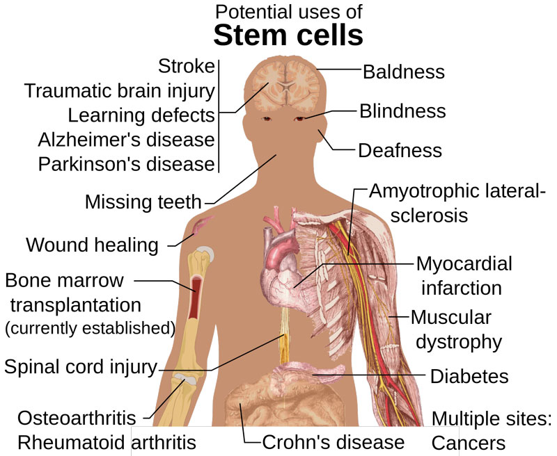 Vital Facts about the Stem Cell Therapy